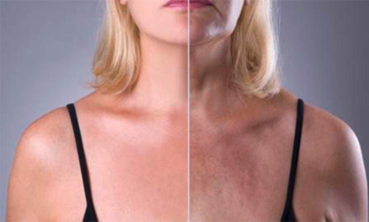 Rejuvenecimiento de cuello y escote