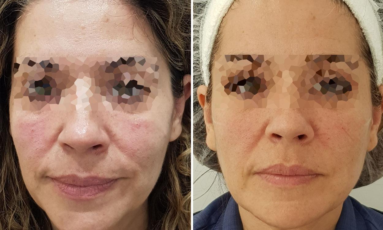 Remodelación facial con ALGENESS®