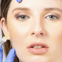 ¿Cuándo aplicar Botox?